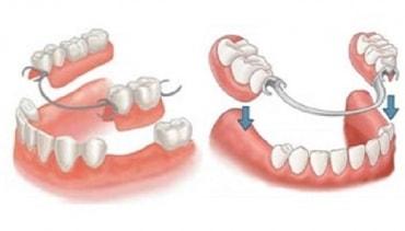 Ottawa Denture & Implant Denture Clinic I Full Dentures I